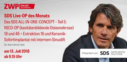 """Heute einschalten: Live-OP """"Das SDS ALL-IN-ONE-CONCEPT – Teil 5"""""""