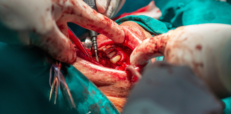 Seltener Tumor: Teenager werden 82 Zähne extrahiert