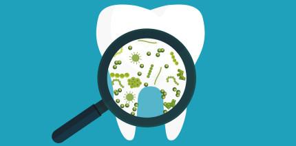 Wurzelbehandlung: Neue Erkenntnisse über Mikrobiom