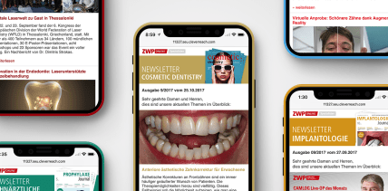 Fachlich up to date: Spezialisten-Newsletter Cosmetic Dentistry
