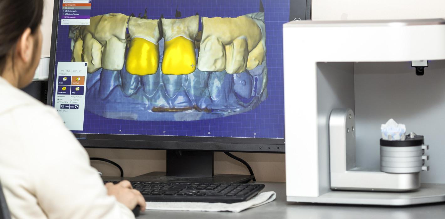 Studie: Zähne nachwachsen lassen mittels 3D-Druck - ZWP