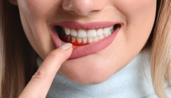 Zahnfleischbluten kann Zeichen von Vitamin-C-Mangel sein