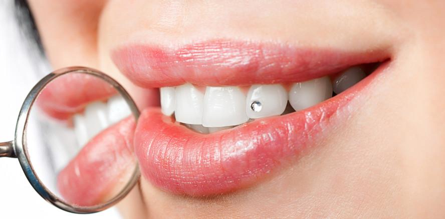 Dentales Comeback! Zahnschmuck erlebt Revival