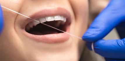 Abzocke: Schummeln Schweizer Zahnärzte bei der PZR?