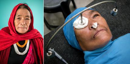 Projekt «Altgold für Augenlicht»: Tagelang wandern, um zu sehen
