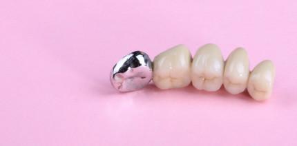 Anspruch auf Zahnersatz bei Vorschädigung durch Parodontitis