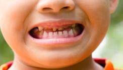 Zahnschmerzen waren für Aborigine-Kinder normal