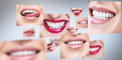 Zahngesundheitsziele: So sagt Australien Karies den Kampf an