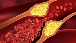 Bakterien im Mund: Ursache für Arteriosklerose?