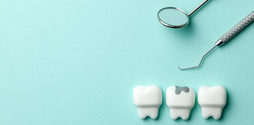 Zahnreport 2020: Mehr Karies bei Kindern als angenommen