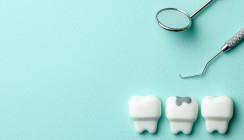 Zahnreport 2020: Mehr Karies bei Kindern, als angenommen