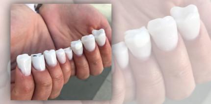 Beautytrend: Zähne zeigen – aber mit den Fingern
