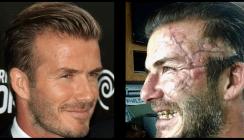 Vom Beau zum Freak: David Beckham schockt mit ekelhaftem Gebiss