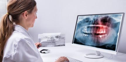 DSGVO in der Praxis – Röntgenbilder richtig verarbeiten