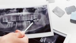Menopause: Bisphosphonate begünstigen Implantatverlust