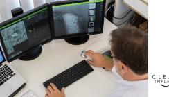 Studie zur Qualität dentaler Implantate: Erhebliche Unterschiede
