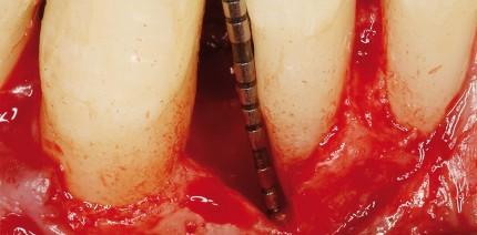 Gesteuerte parodontale Regeneration mit einer resorbierbaren Membran