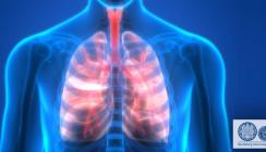 Chronische Lungenerkrankung und Parodontose