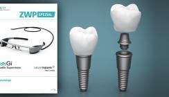 Sommerausgabe der ZWP spezial mit Schwerpunktthema Implantologie