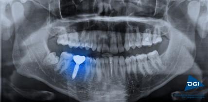 In Deutschland werden jährlich 1,3 Millionen Implantate gesetzt