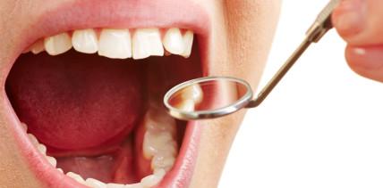 Orales Plattenepithelkarzinom: Update der S2k-Leitlinie