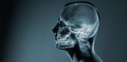 """Update: S1-Leitlinie """"Radiologische Diagnostik im Kopf-Hals-Bereich"""""""