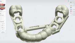 Digitale Implantologie: Zusammenführen von 3-D-Implantatplanung und 3-D-Druck