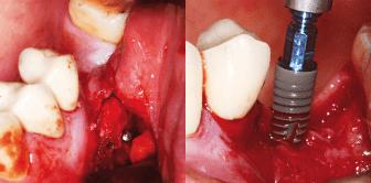 Komplexe Knochenaugmentation und Alternativen