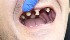 (Il)legale Drogen – Kryptonit für Zähne und Zahnfleisch