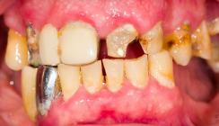 Auswirkungen von Drogen auf die Mundgesundheit