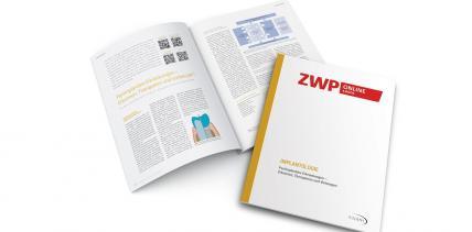 Neues eBook: Periimplantitis mit Konzept entgegentreten