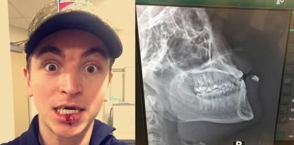 Nach Eishockey-Match: Zahn in Unterlippe gefunden