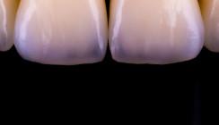 Ekeltrend: Schmuckdesign aus täuschend echten Zähnen
