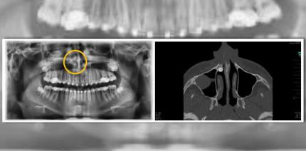 Außergewöhnlicher Fall: Chirurgen entfernen Zahn über die Nase