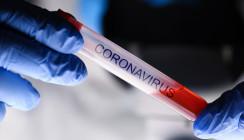Coronavirus: Erster Fall in der Schweiz – was ist zu beachten?