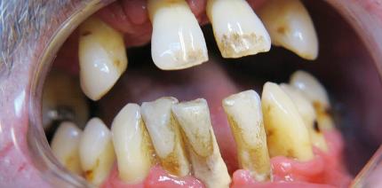 Implantatversorgungen nach einem modifizierten Protokoll