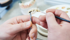 Erhöhung der Festzuschüsse für Zahnersatz um 10 Prozent