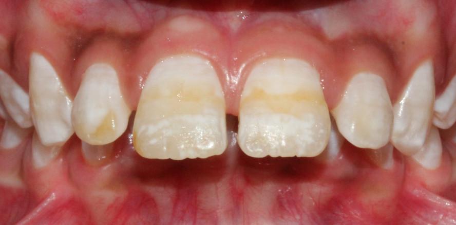 Fluorid in der Kritik: Verantwortlich für Zahnschmelzdefekte?