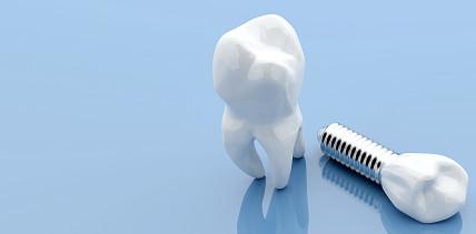 Innovative Forschung: Damit Implantate länger halten
