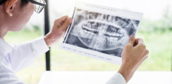 4.000 Euro Schmerzensgeld wegen verlorener Fräse in Kieferhöhle