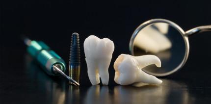 Hightech-Zahnersatz: Mit Nanotechnik gegen Bakterien