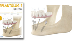 Implantologie Journal: Die erste Ausgabe des Jahres online lesen