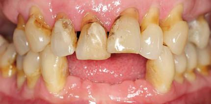 Zahnimplantate – Von der Planung im Team zum ästhetischen Gesamterfolg