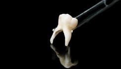 John Lennons Zahn als Köder für Mundkrebsvorsorge