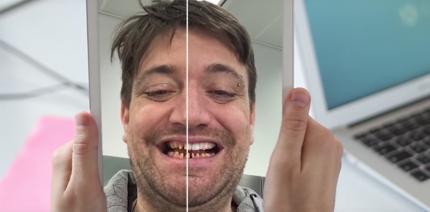 Virtuelle Anprobe: Schönere Zähne dank Augmented Reality