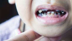 Vernachlässigte Milchzähne – Zahnärzte schlagen Alarm