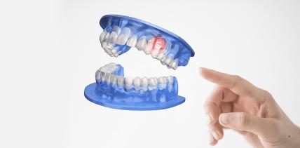 Keramik verdrängt Metalle beim Zahnersatz