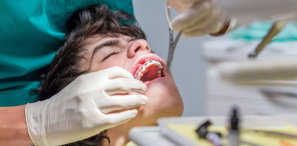 Unsachgemäße KFO-Behandlung verschlimmert Zahnfehlstellungen