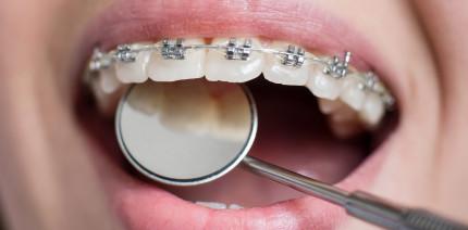 Zusammenhang zwischen Zahnfehlstellungen und Parodontitis