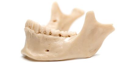 Kieferknochen aus dem Drucker: Forschungserfolg beim Bioprinting